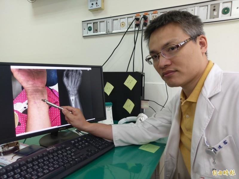 豐原醫院骨科醫師羅達富表示,張婦採微創手術治療骨折,只在手腕處開兩小刀,傷口小、恢復快。(記者歐素美攝)