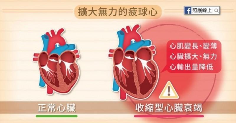 心臟衰竭很致命,讓心臟輸出力降低。(心臟學會提供)