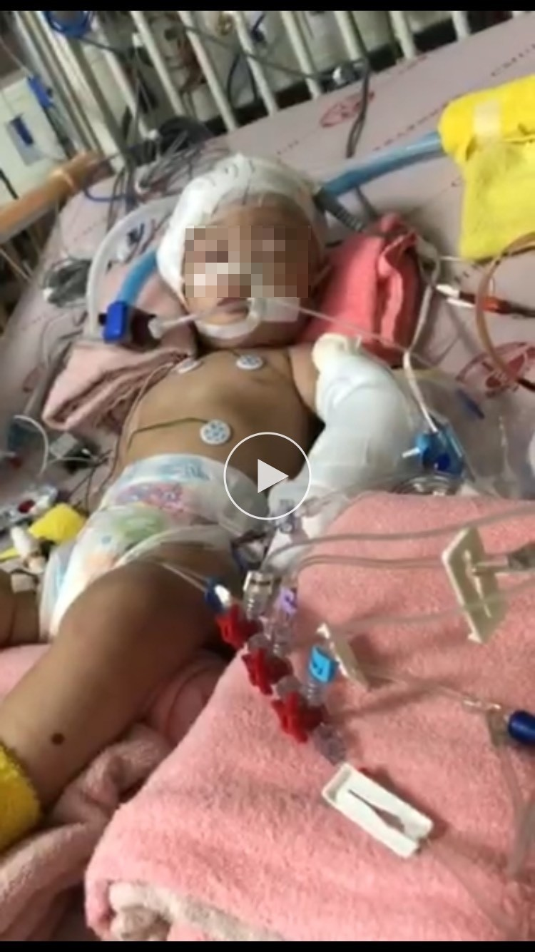 1歲女嬰疑似被保母施虐,頭部重創,生命垂危,目前以低溫療法治療。(家屬提供)