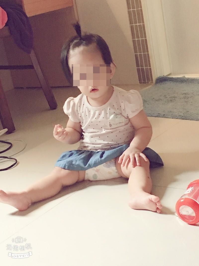 1歲女嬰疑似被保母施虐,頭部重創,生命垂危。(家屬提供)