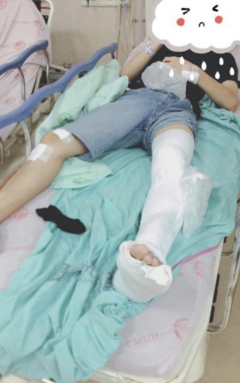 男大生被打到腎破斷腿住院。(記者許國楨攝)