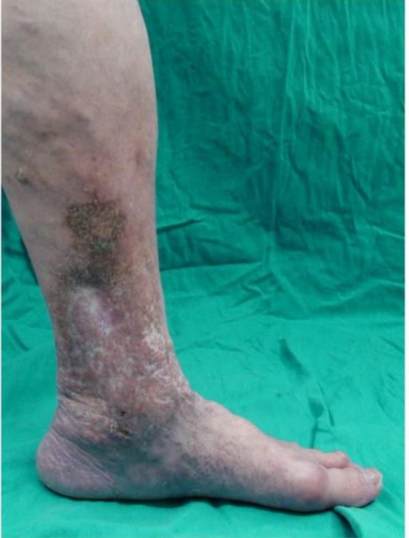 歐姓婦人嚴重靜脈曲張,伴隨鬱血性濕疹,傷口腫爛,曾被誤認是烏腳病和白色萎縮症。(記者蔡淑媛翻攝)