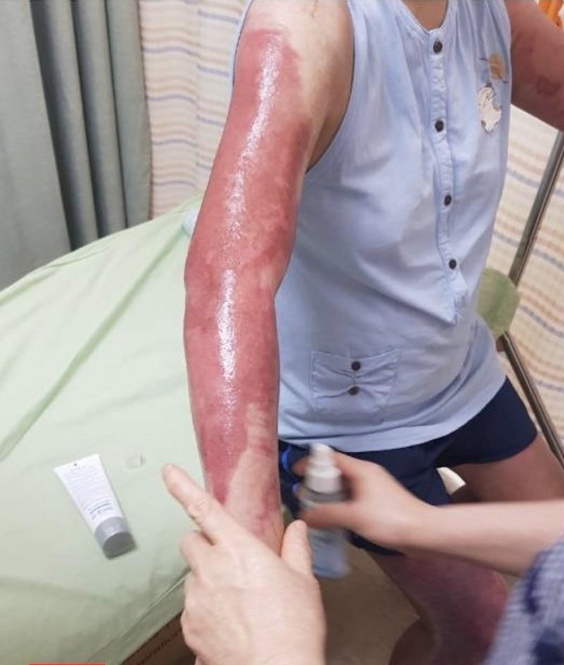 龍小姐嚴重燒燙傷,產生劇痛。(記者蔡淑媛翻攝)