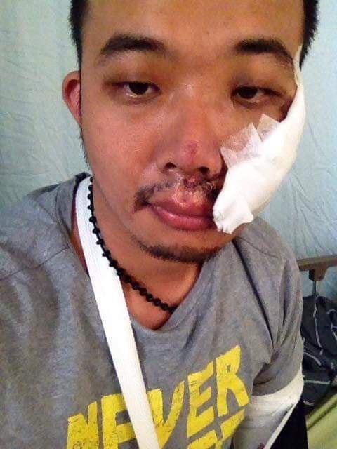 遭韓粉恐嚇、霸凌的罷韓煎餅老闆,FB貼出臉傷照嚇壞支持者,原來是去年車禍受傷照,老闆還PO文感謝支持者。(取自廣德家FB)
