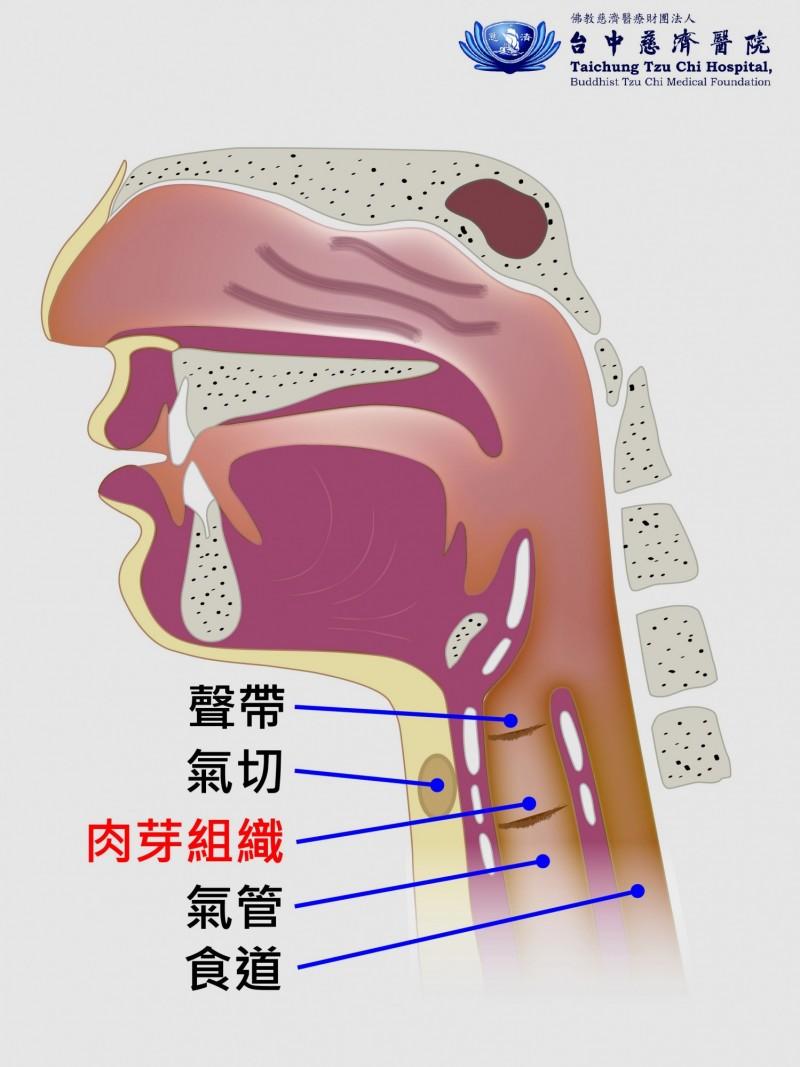 林翁氣管因肉芽阻礙呼吸示意圖。(記者歐素美翻攝)