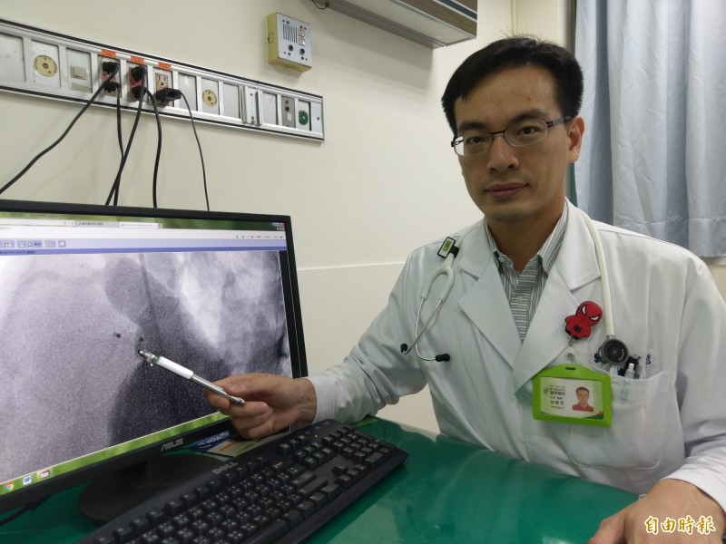 豐原醫院兒童心臟醫師林聖哲表示,心導管修補心室中隔缺損,是透過照影找到心臟破損位置及大小,再找適合的關閉器,將缺損關閉,阻擋不正常的血流。(記者歐素美攝)