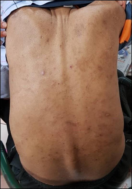 經中西合療,使用藥浴包和止癢藥膏兩個月後,皮膚搔癢大幅改善。(台北慈濟醫院提供)