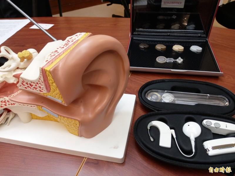 部分聽損的病患可以植入電子耳來改善。(記者吳亮儀攝)
