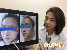 圖為醫師解釋車禍後肥厚性疤痕治療方法,此為示意圖與新聞事件無關。(資料照,記者楊政郡攝)
