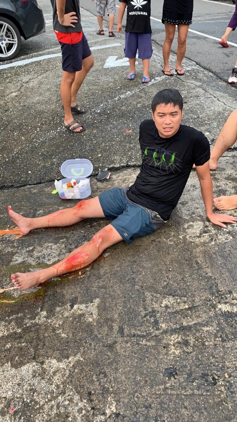 司機為了擋住休旅車雙腿壓傷。(記者蔡宗憲翻攝)