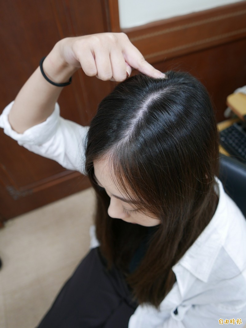 平常可按壓頭頂百會穴,促進頭皮血液循環,刺激頭髮生長。(記者蔡淑媛攝)