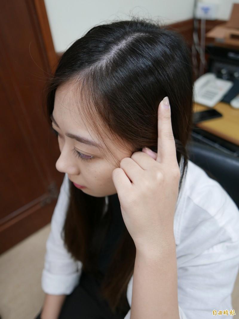 按壓頭部側邊「率谷穴」刺激頭髮生長。(記者蔡淑媛攝)