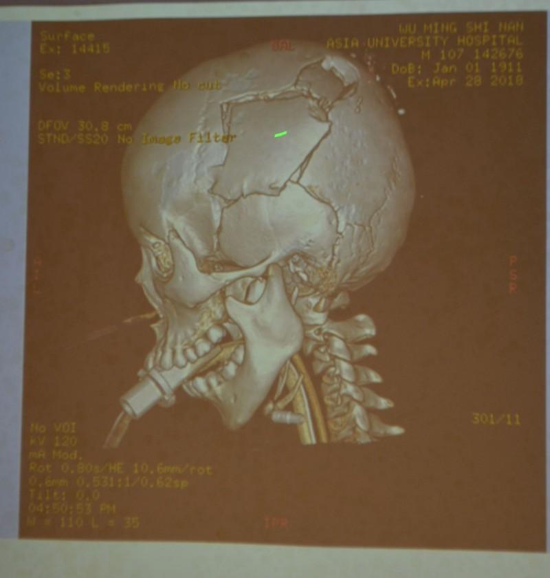 王宏至去年因騎單車摔車顱骨重創,檢查發現左側顱骨嚴重破碎一度昏迷。(記者陳建志翻攝)