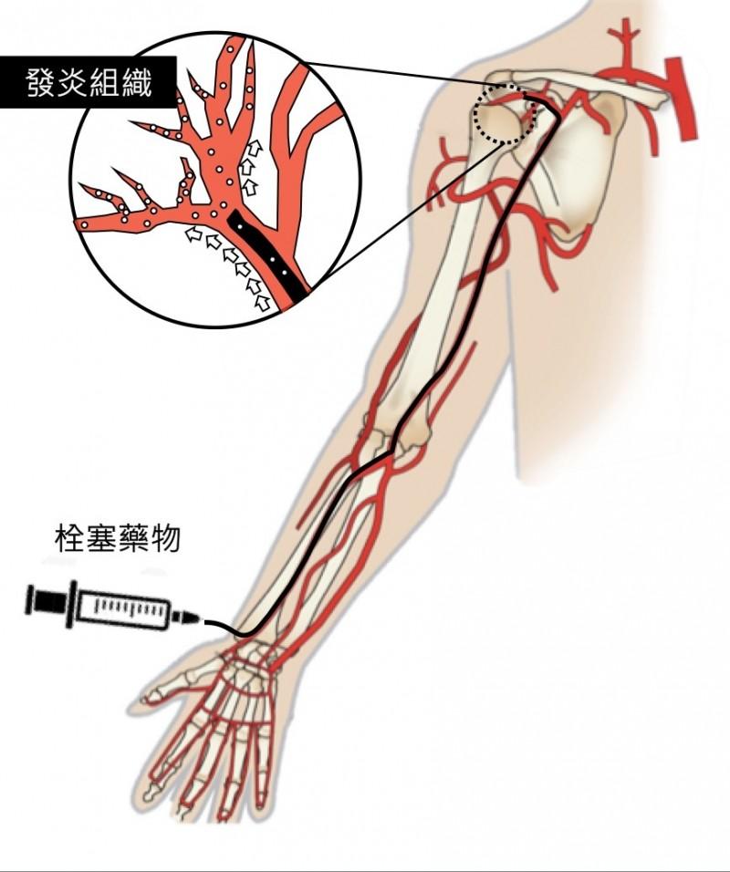 骨骼肌肉栓塞治療以導管從手部或鼠蹊部動脈注射藥物去除毛毛樣血管,改善發炎、疼痛。(記者蔡淑媛翻攝)