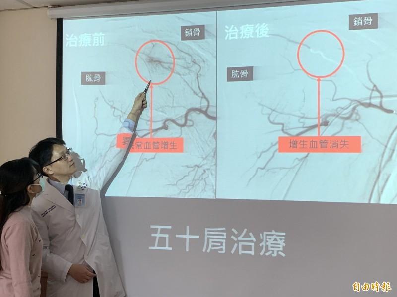 諶小姐異常增生的毛毛樣血管(圖左)引起五十肩,接受骨骼肌肉栓塞治療後,異常血管消失(圖右)。(記者蔡淑媛攝)