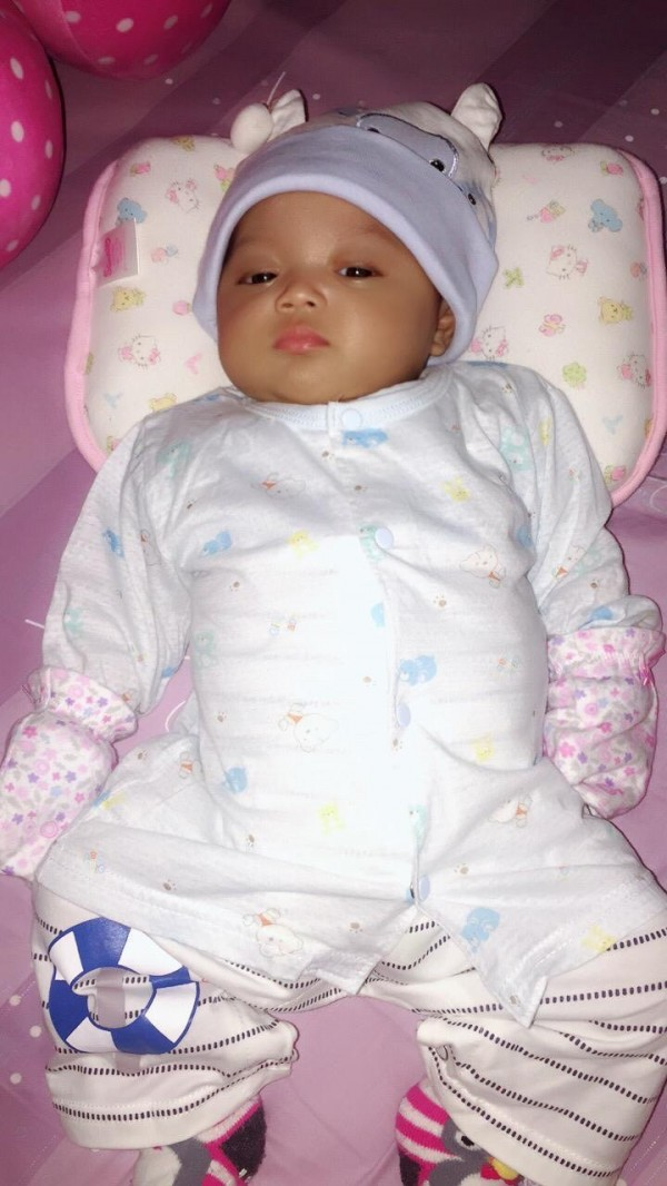 印尼小女童Cinta在5個月大時,發現罹患很少見的慢性骨髓性白血病,癌細胞侵襲肝臟、脾臟,治療前腹大如籃球。(記者蔡淑媛翻攝)