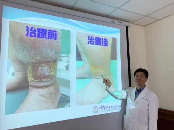 林先生罹患最重度靜脈曲張,傷口潰瘍不時出血,接受泡沫注射治療,大幅改善,治癒傷口。(記者蔡淑媛翻攝)