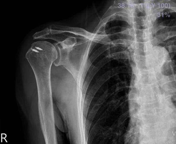 新式微創關節鏡手術治療手肩膀巨大旋轉肌破裂病症。(記者王俊忠翻攝)
