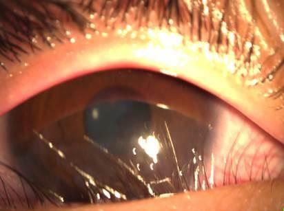 男童因發育長胖,「下眼瞼贅皮」情形嚴重,把睫毛往眼球方向推,造成眼角膜擦損及混濁,需手術治療。(苗栗醫院提供)