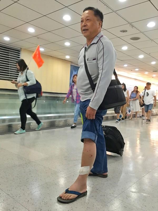 台灣旅行團在非洲肯亞發生遭河馬攻擊事件,其中23名團員在14日下午返台,歷劫餘生的團員吳鵬德向記者展示腳上還包紮著繃帶的傷口。(中央社)
