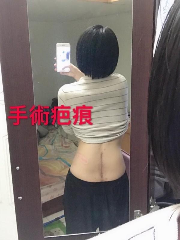 鄧女開刀後留下一長條手術疤痕。(圖擷自爆料公社)