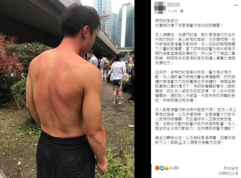 一名自稱為澳門記者的男子陳嘉俊,稍早在網路上發文透露,「剛於香港進行反送中示威的採訪」,並稱他有表明記者身分,卻仍在「毫無防備」下,被港警施放胡椒噴霧,對執法行為表達「極度不滿」。(圖翻攝自臉書)