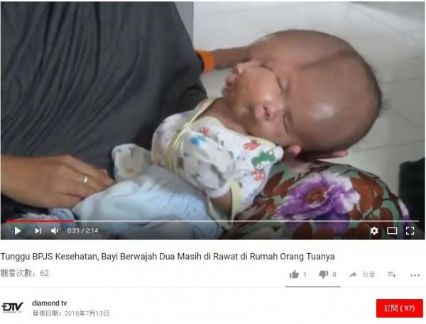 雙面嬰兒。(圖翻攝自YouTube)
