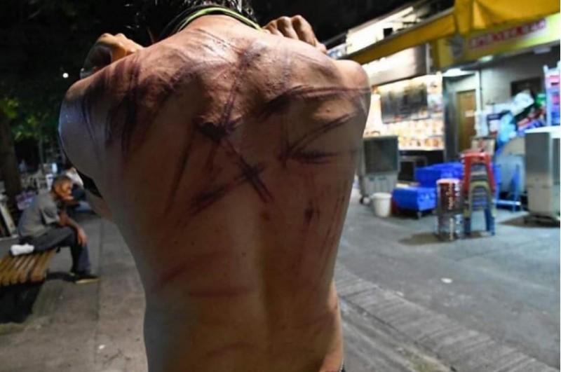 香港市民於元朗遭到大量不明白衣暴徒以藤條痛打,多人輕重傷甚至有孕婦流產、民眾命危送醫的消息傳出。(圖取自臉書)