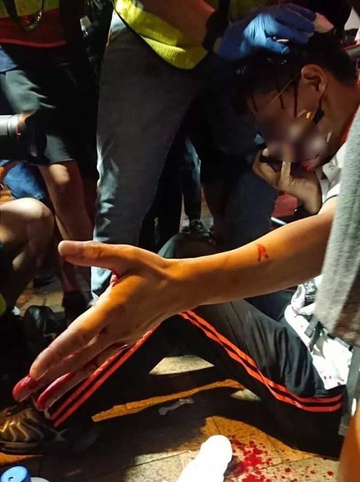 現場傳出有示威者血流滿面的照片。(圖擷取自TG頻道_7/28元朗反恐遊行主谷)