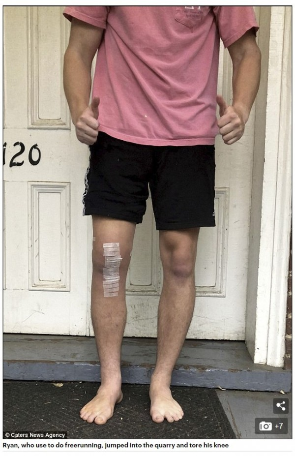日前,美國男子雷恩跳水時膝蓋破裂,傷口竟長達十幾公分。(圖擷取自每日郵報)