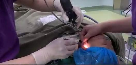 醫師替男童動手術。(圖擷取自《重慶晨報》)