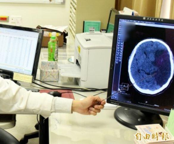 國健署建議,腦中風發生後要趕快就醫治療。(資料照)