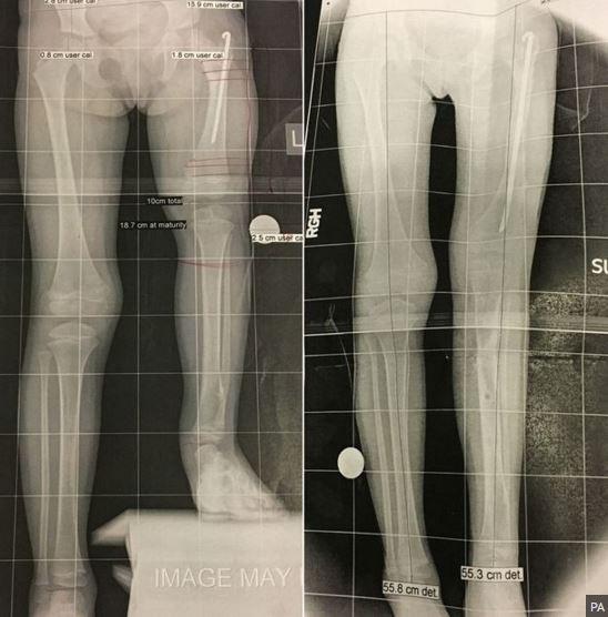 經歷了4個月的治療,莫拉維克的左腿增長11公分,雙腿暫時維持對稱。(圖擷取自Mirror)