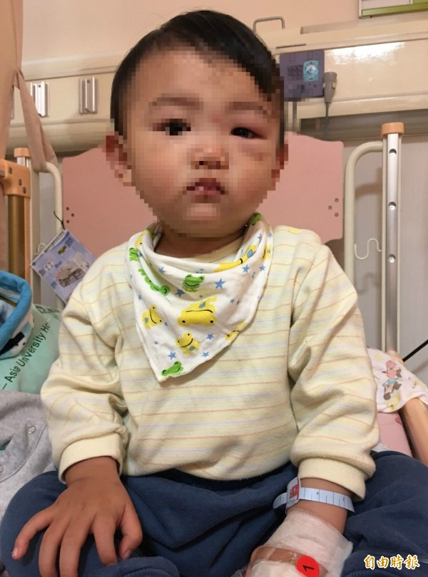 簡姓男童左眼旁被蚊子叮,竟罹患「蜂窩性組織炎」,腫得像麵龜,經冰敷和抗生素治療後,今天已經明顯消腫。(記者陳建志攝)