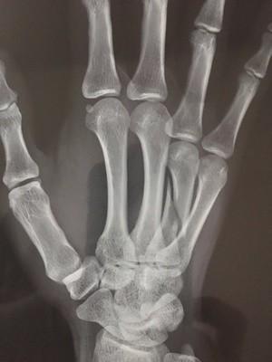 傷者提供的X光片—本圖為右手受傷。(擷取自《今日悉尼》)