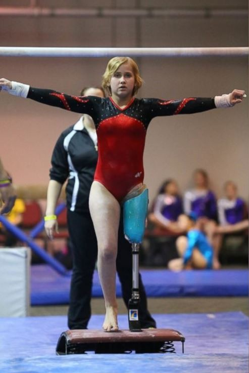 美國16歲的體操少女雖曾截肢,但裝上義肢後,她用表現征服全場觀眾。(圖擷取自《abc news》)