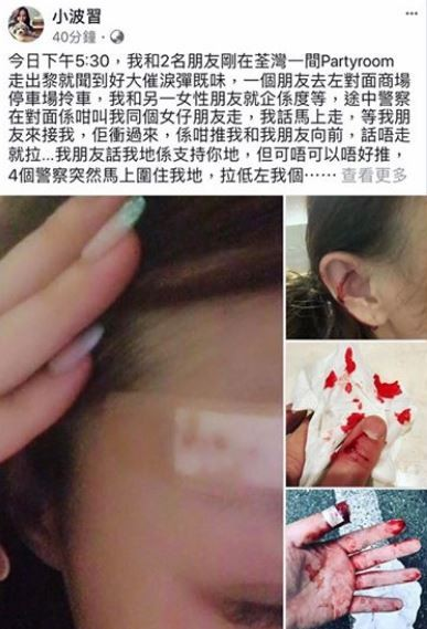 香港正妹挺港警,卻還是被警方打到頭破血流。(圖擷自香港突發事故報料區臉書)
