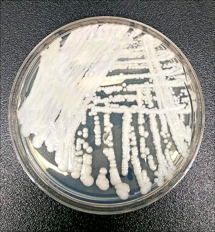 具強大抗藥性的耳念珠菌已被美國疾病管制與預防中心列入緊急威脅名單。(美聯社)