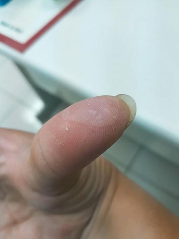倪藝蔆為了製作拉糖作品,手指不斷起泡,但還是含著淚完成。(圖擷自倪藝蔆臉書)
