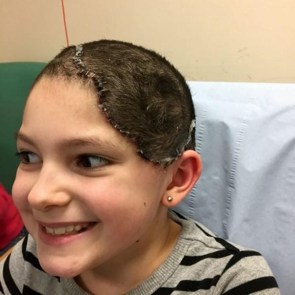 布蕾特治療完成後成效十分顯著。(圖擷取自《鏡報》)