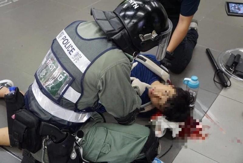 香港警方7日晚間進入港鐵大埔墟站追捕示威者時,以警棍毆打在場人士,導致1名17歲的朱姓學生頭破血流。(圖擷取自TG_大埔總公海GP)