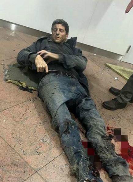 貝林在機場大爆炸中受到重創。(圖擷取自推特)