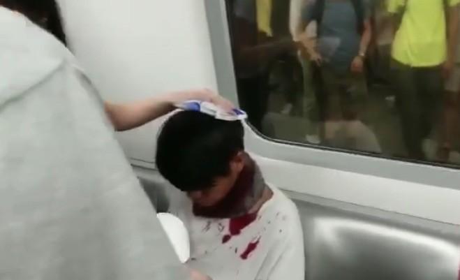 地鐵站內有孩童被警察毆打濺血。(圖擷取自TG_寶寶channel)