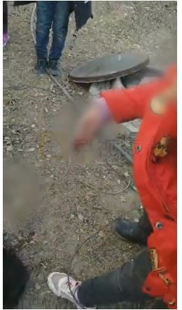 圖為其中1名遭炸斷手指的女童。(圖擷取自《梨視頻》)