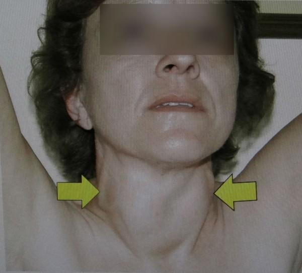 甲狀腺機能亢進患者頸部常有明顯的雙側甲狀腺腫大現象(箭頭指處)。(衛福部台南醫院提供)