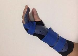 本圖為右手受傷。(擷取自《今日悉尼》)