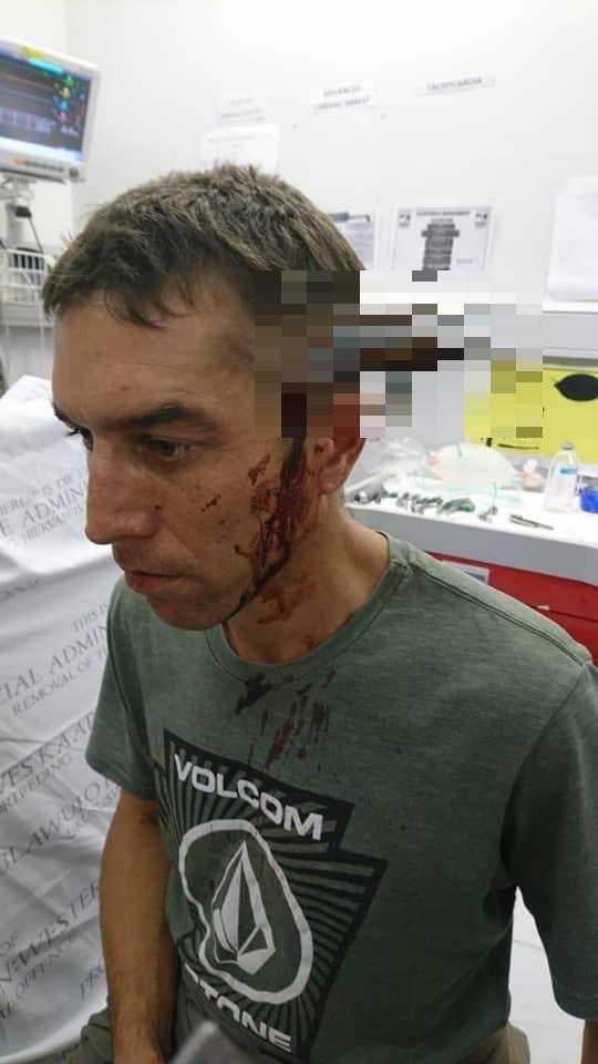 南非開普敦有名男子,日前騎單車通勤上班時,途中遭到2名匪徒持刀搶劫,結果男子的頭部竟被匪徒插入一把刀;結果男子不但還能將匪徒打跑,大難不死的他還能自行騎腳踏車前往醫院求診。(圖擷取自「溫佩·范德梅威」FB)