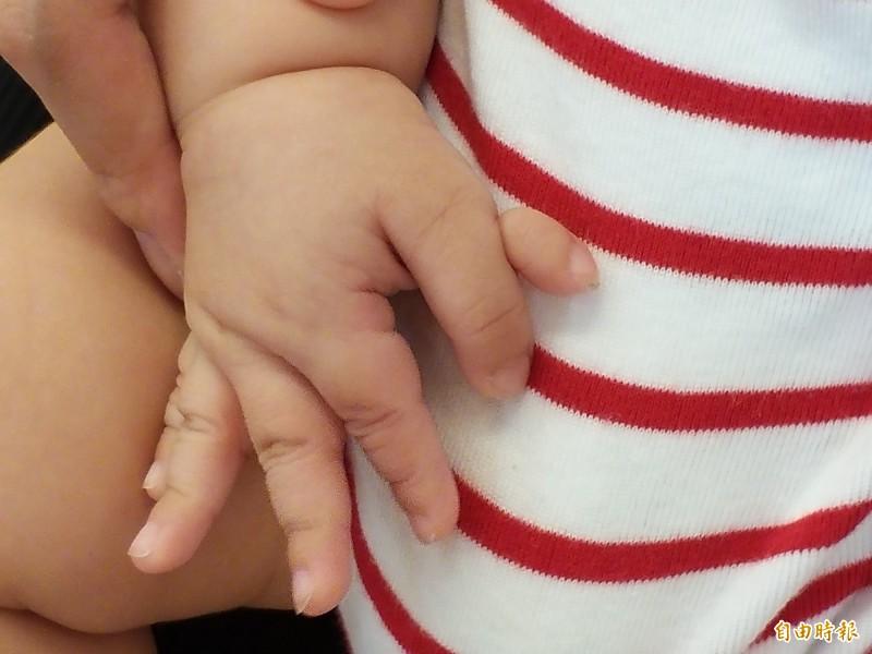 醫師吳瓊惠表示,根據文獻統計,平均每 500名新生兒中就有一名多指畸形的機會。臨床上,多指症好發於拇指側。(記者廖雪茹攝)