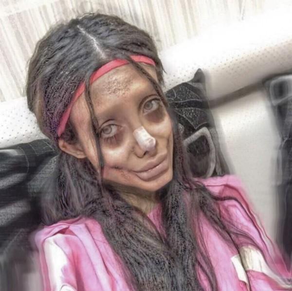 塔巴爾去年自稱為了像裘莉一樣美,去整形50次,變成了「喪屍裘莉」。(圖擷取自IG @sahartabar_offcial)