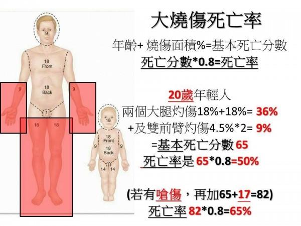 台北市立聯合醫院醫師劉文勝在臉書上說明,如何看燒傷死亡率。(圖片取自劉文勝臉書)